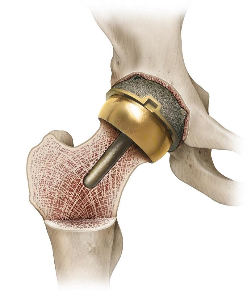 керамический эндопротез тазобедренного сустава