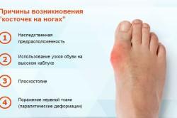 """Причины возникновения """"косточек"""" на ногах"""