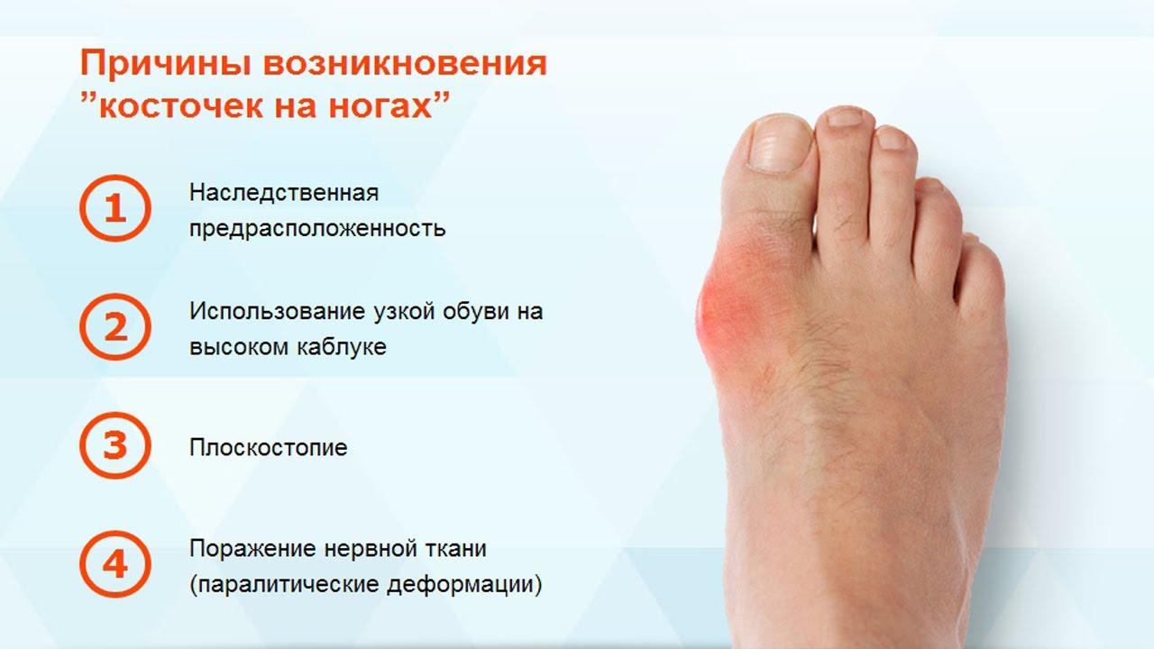 Косточки на ногах - причины возникновения и методы лечения