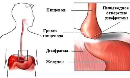 Схема грыжи пищеводного отверстия диафрагмы