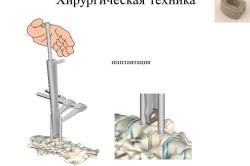 Хирургическая техника для имплантации дисков