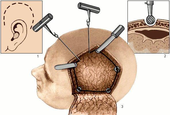 Схема трепанации черепа