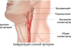 Бифуркация сонной артерии