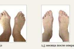 Результаты операции шишки на ноге