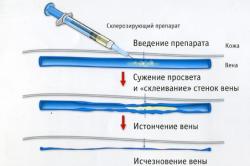 Принцип склеротерапии
