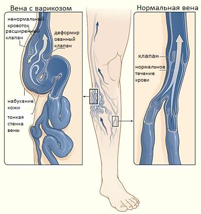 Особенности варикоза