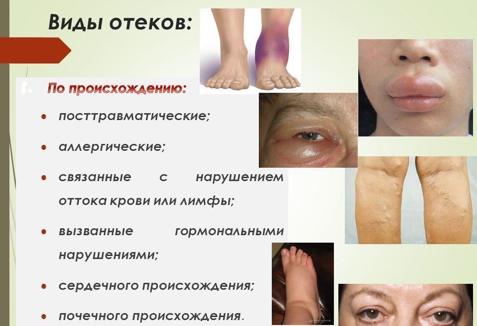 Кровит геморроидальный узел форум