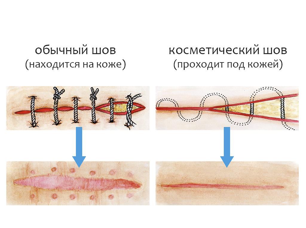 паховая грыжа до и после операции фото до и после