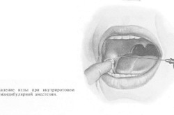 Направление иглы при внутриротовом способе мандибулярной анестезии