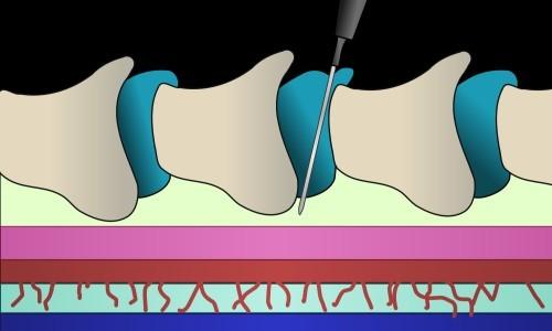 Анестезия спинного мозга